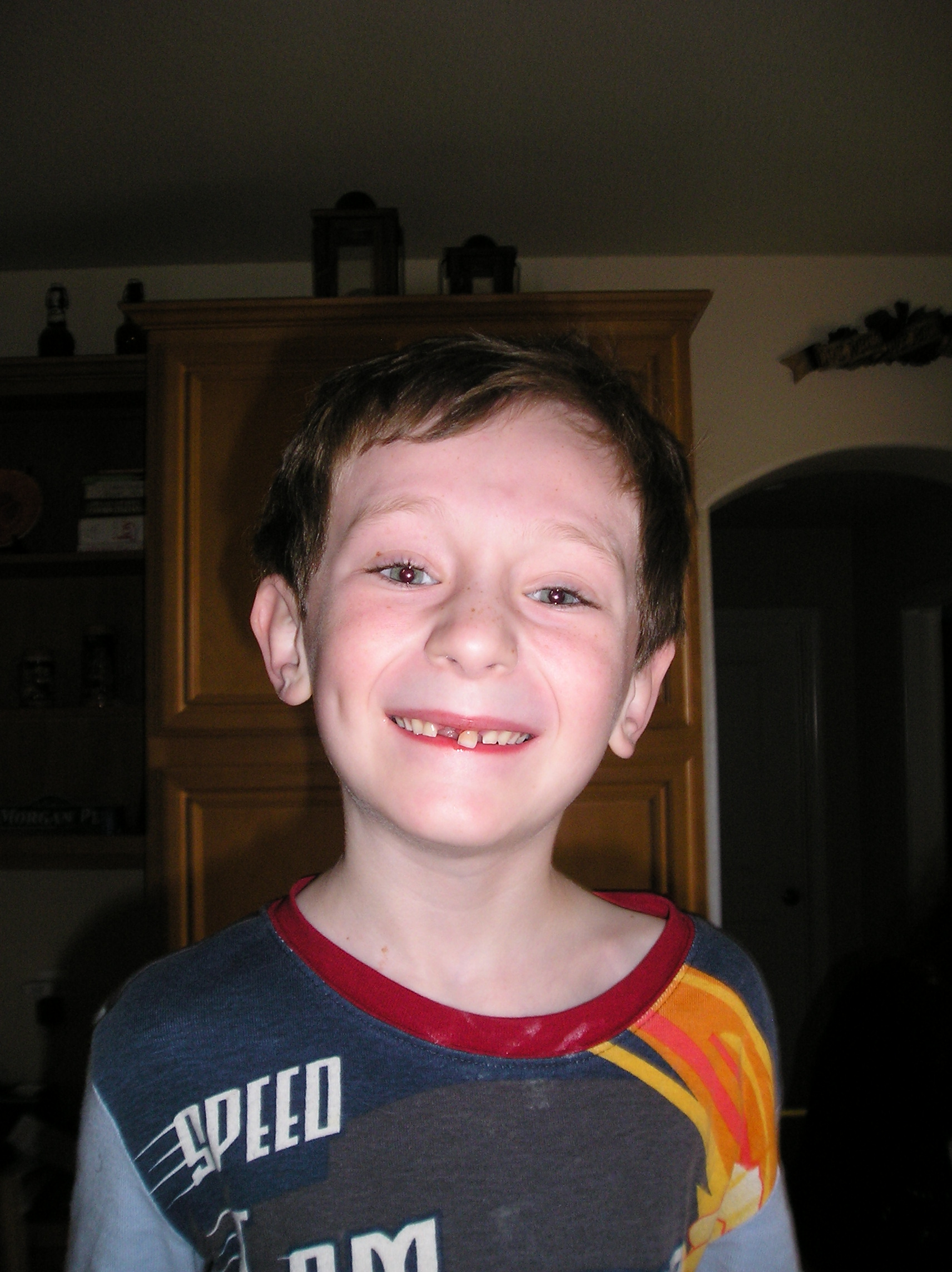 Shane loses a tooth